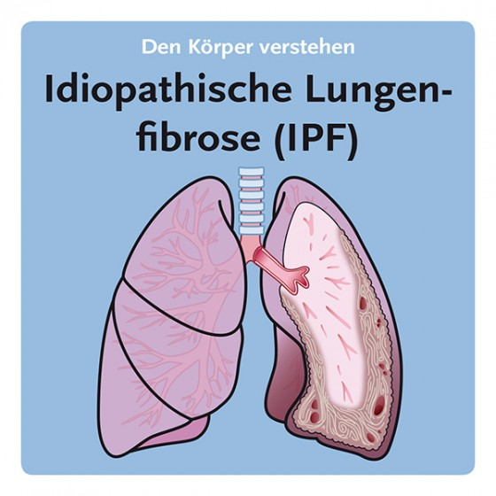 Idiopathische Lungenfibrose (IPF)