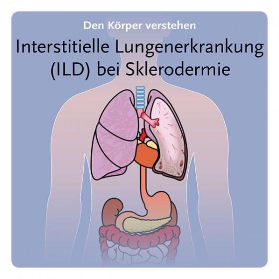 DE-PocketDoktor_ILD-scleroderma_V15-1