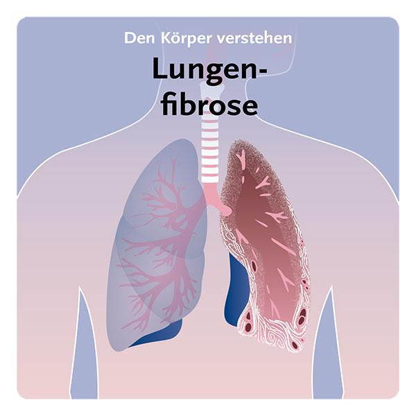 DE-PulmonaryFibrosis_19_10_09-1