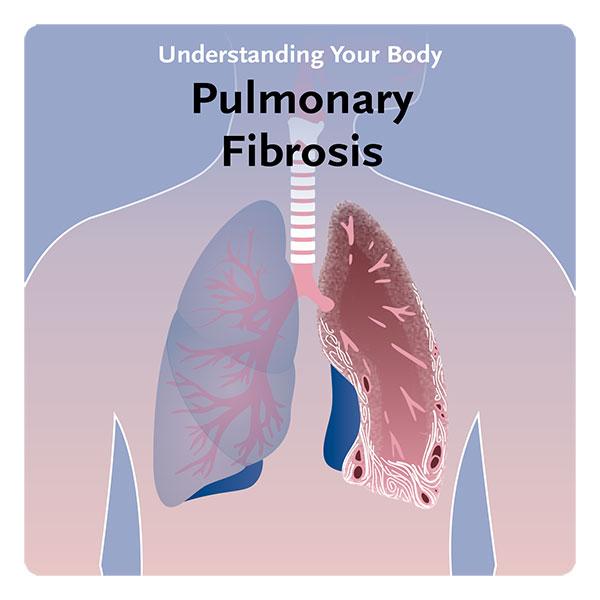 PulmonaryFibrosis_19_12_09-1